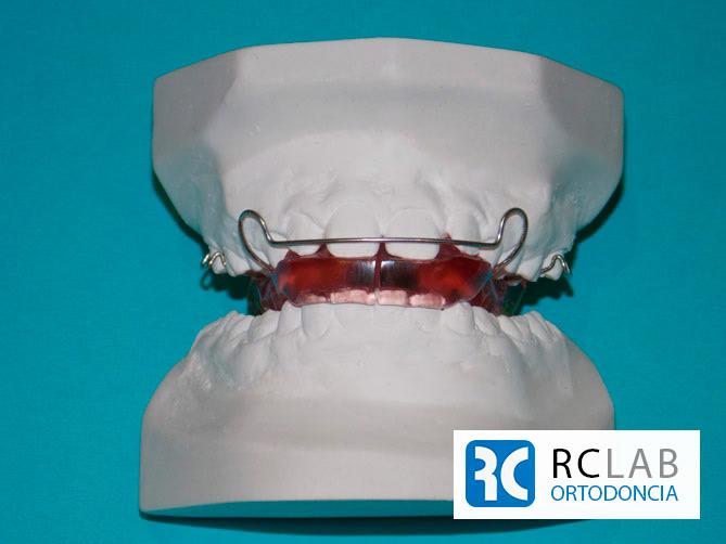 funcional-pfeiffer-sin-contacto-posterior-removible