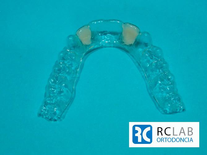 retenedor-invible-con-dos-incisivos-elastica-2